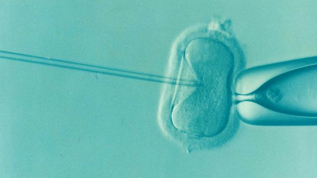 ¿En qué consiste la donación de óvulos?